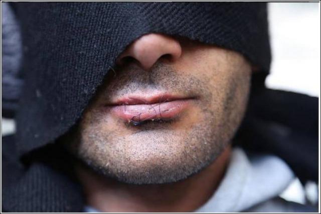 sewed-lips
